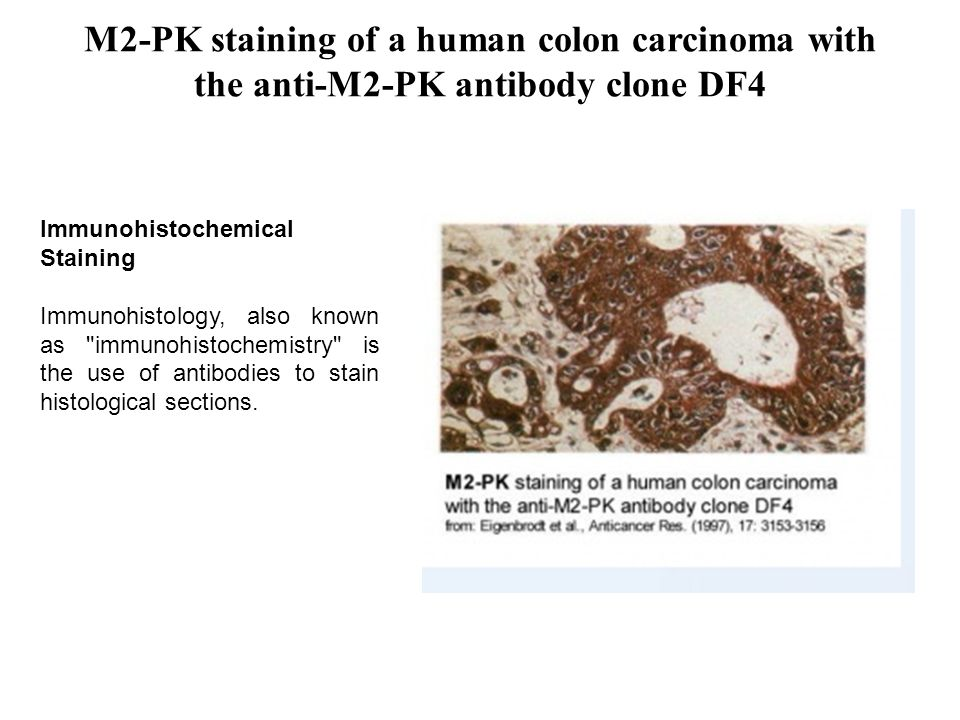 M2-PK staining of a human colon carcinoma with the anti-M2-PK antibody clone DF4