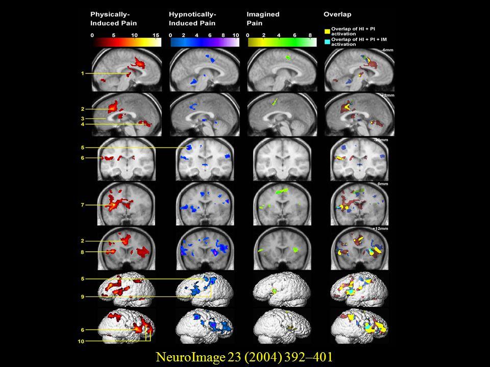 NeuroImage 23 (2004) 392–401