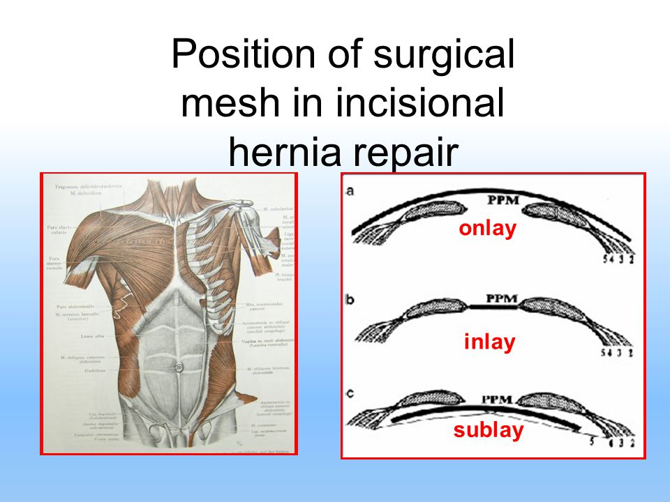 Position of surgical mesh in incisional hernia repair