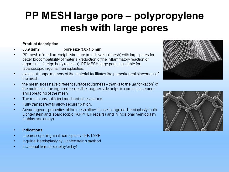 PP MESH large pore – polypropylene mesh with large pores