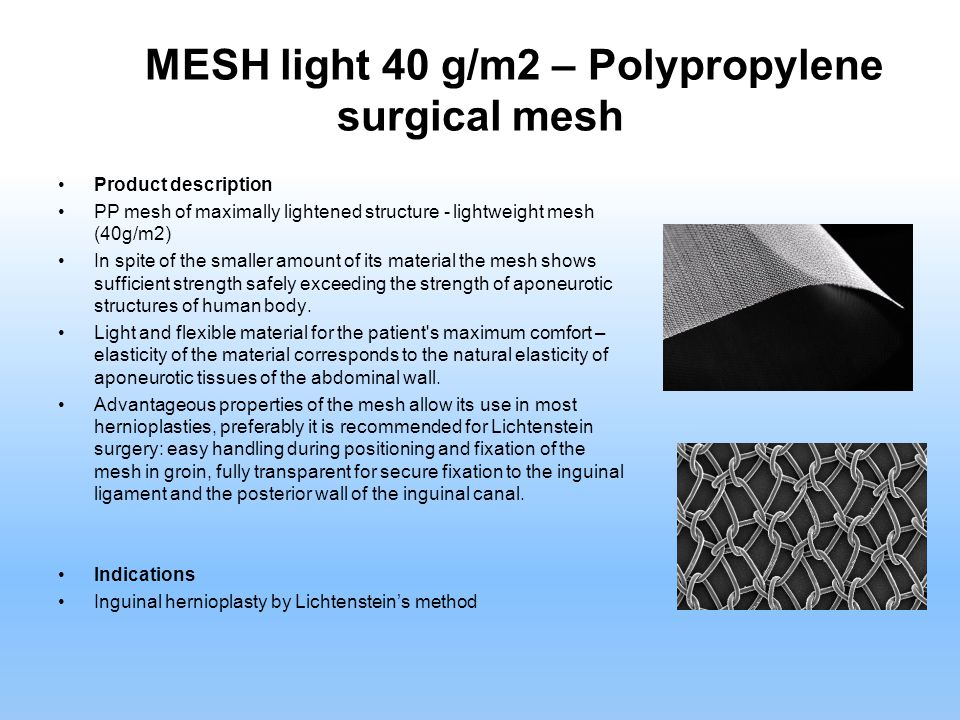PP MESH light 40 g/m2 – Polypropylene surgical mesh