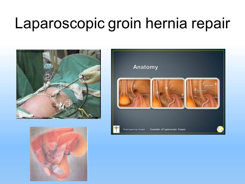 Laparoscopic groin hernia repair