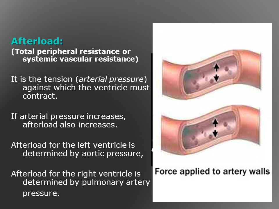 Afterload: (Total peripheral resistance or systemic vascular resistance)