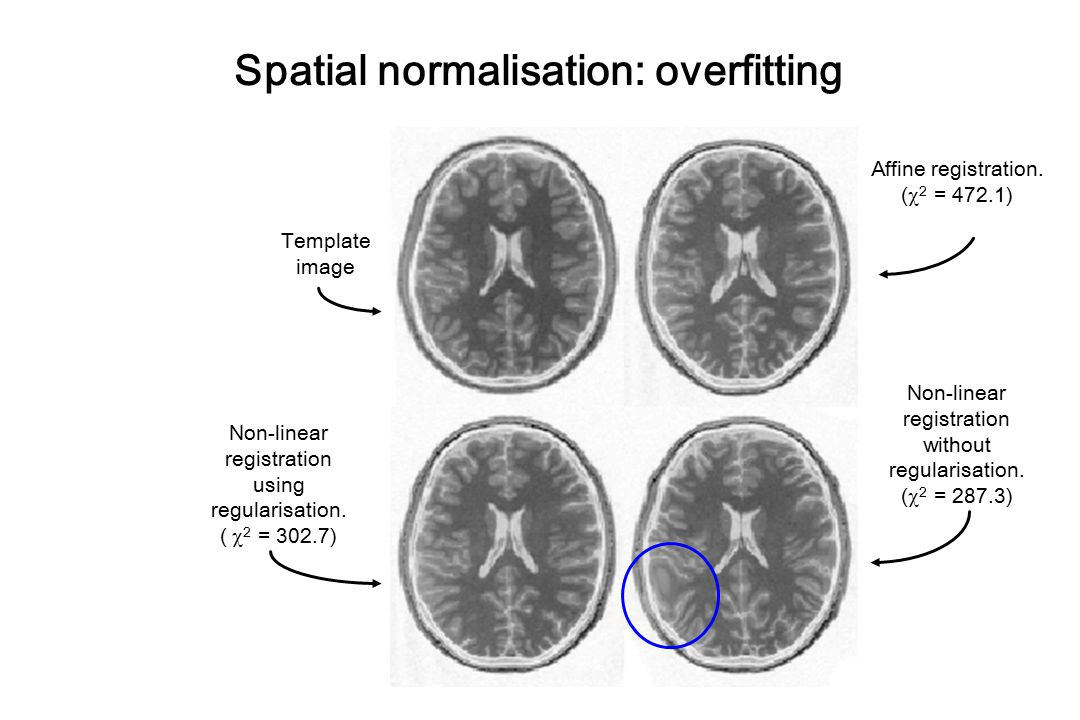 Spatial normalisation: overfitting
