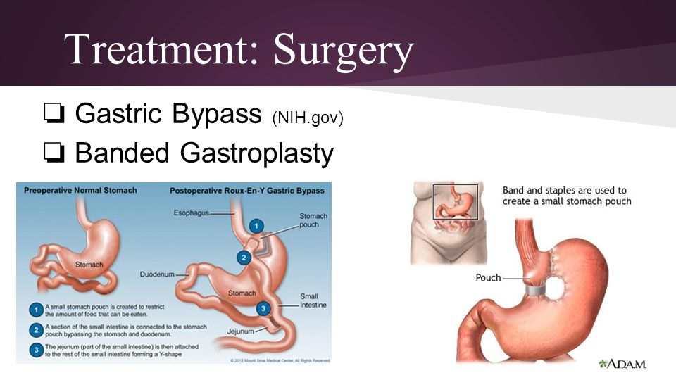 Treatment: Surgery Gastric Bypass (NIH.gov) Banded Gastroplasty