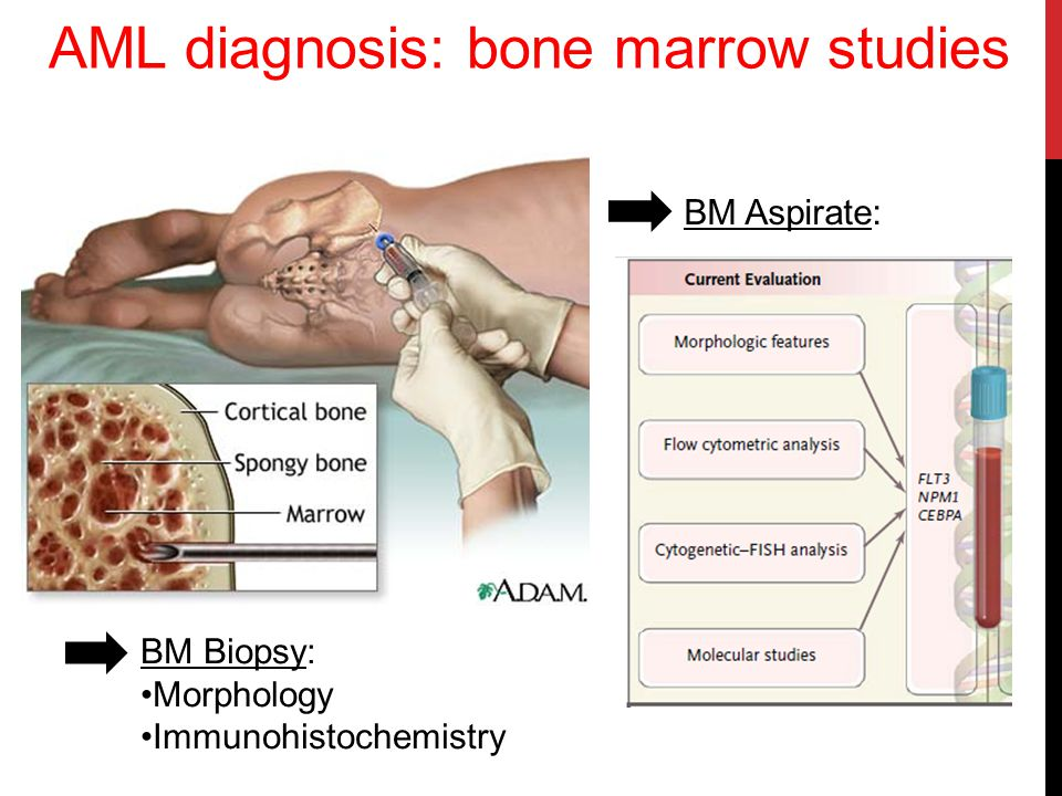 AML diagnosis: bone marrow studies