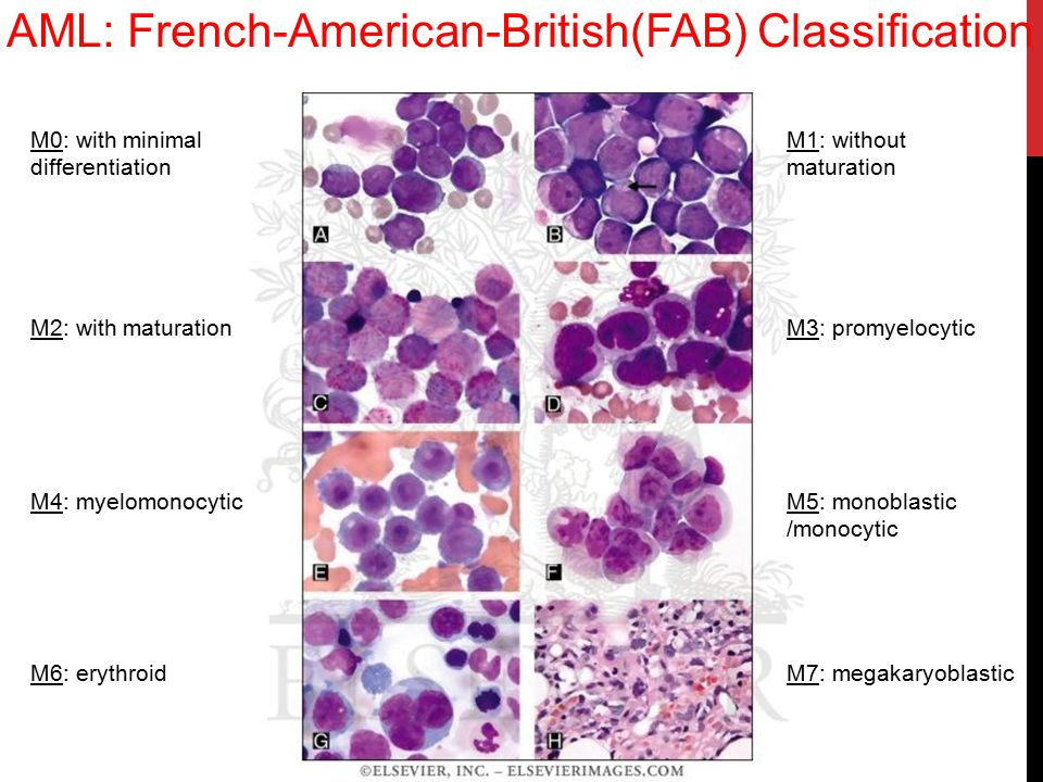 AML: French-American-British(FAB) Classification
