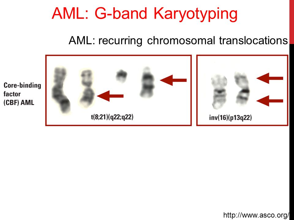 AML: G-band Karyotyping