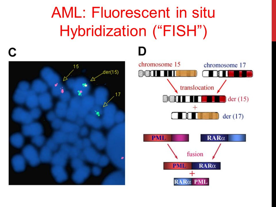 AML: Fluorescent in situ Hybridization ( FISH )