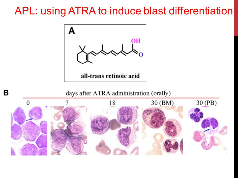 APL: using ATRA to induce blast differentiation