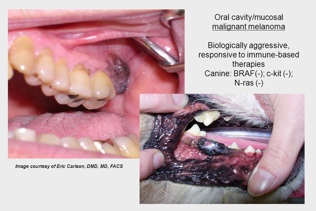 Image courtesy of Eric Carlson, DMD, MD, FACS