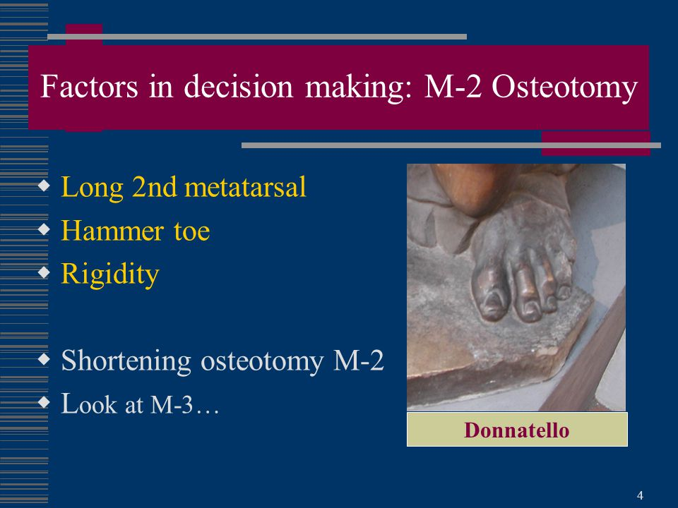 Factors in decision making: M-2 Osteotomy