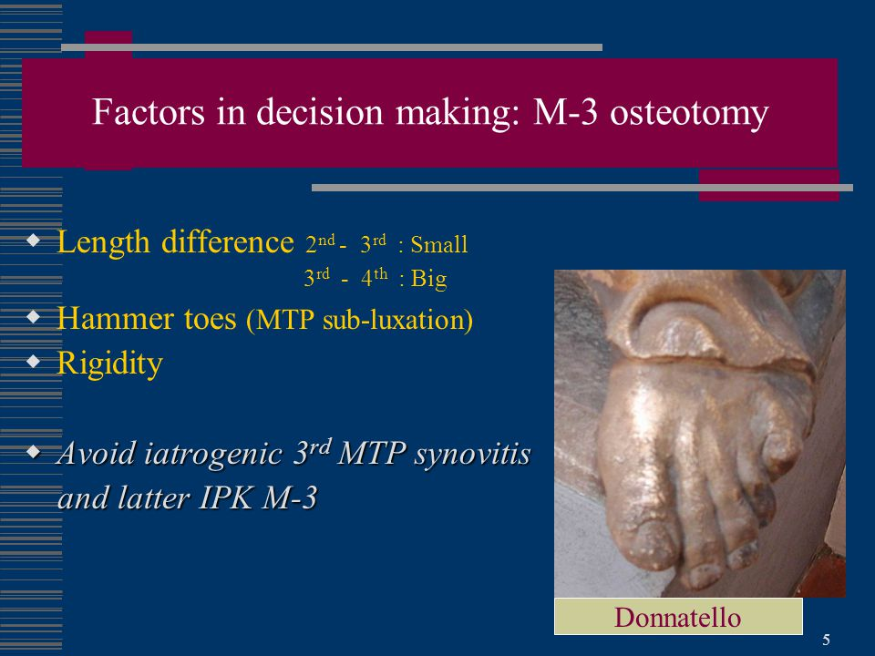 Factors in decision making: M-3 osteotomy