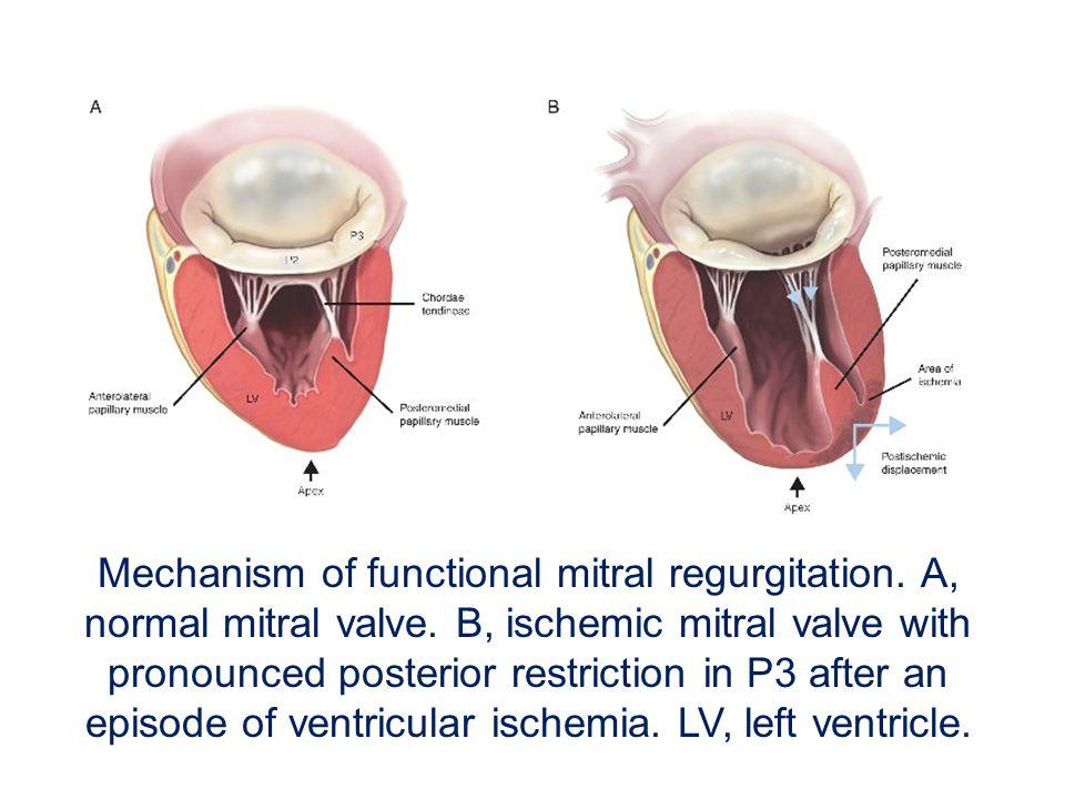 Mechanism of functional mitral regurgitation. A, normal mitral valve