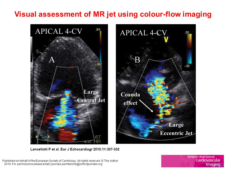 Visual assessment of MR jet using colour-flow imaging