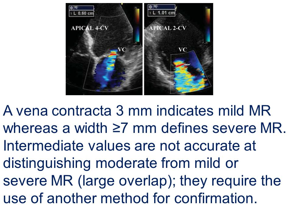 A vena contracta 3 mm indicates mild MR whereas a width ≥7 mm defines severe MR. Intermediate values are not accurate at distinguishing moderate from mild or