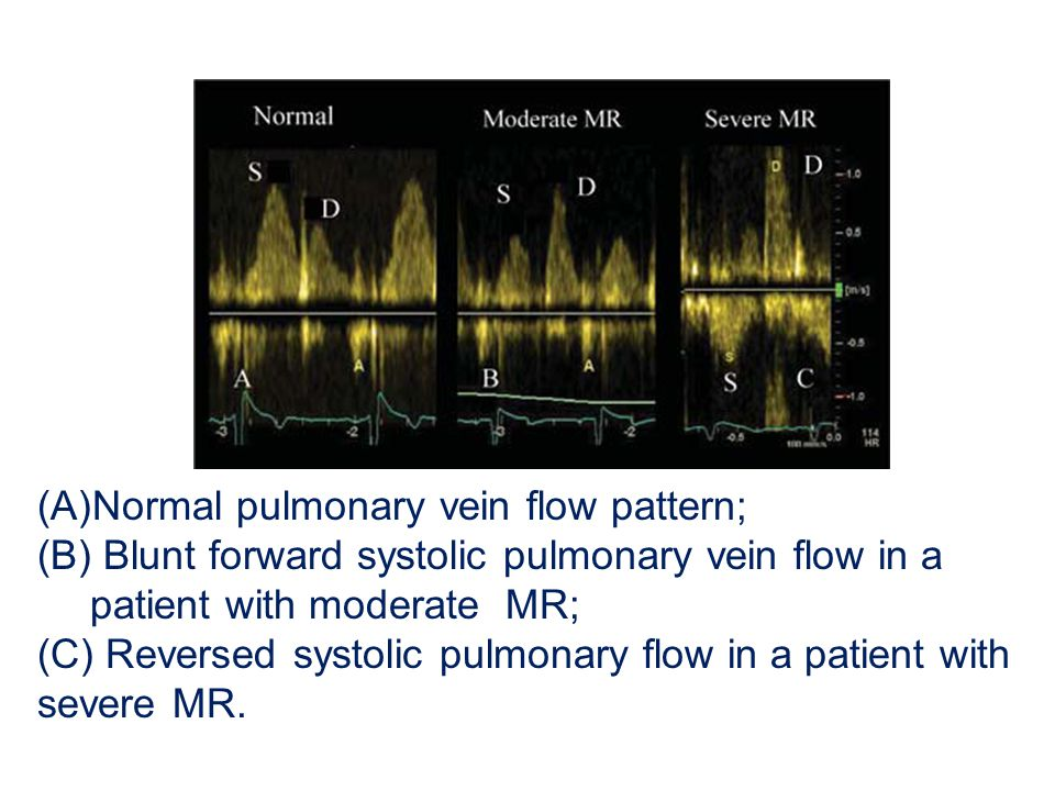 Normal pulmonary vein flow pattern;