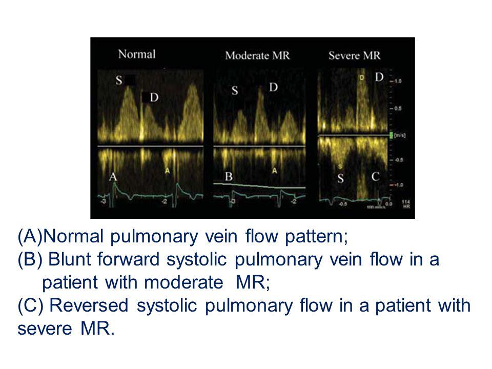 Normal pulmonary vein flow pattern;