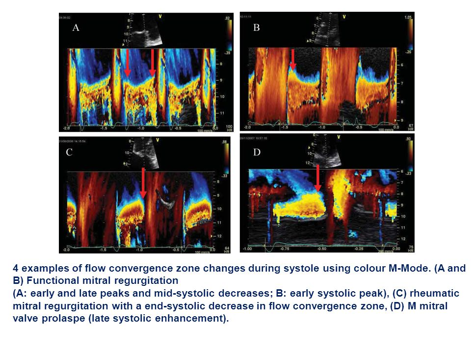 4 examples of flow convergence zone changes during systole using colour M-Mode. (A and B) Functional mitral regurgitation