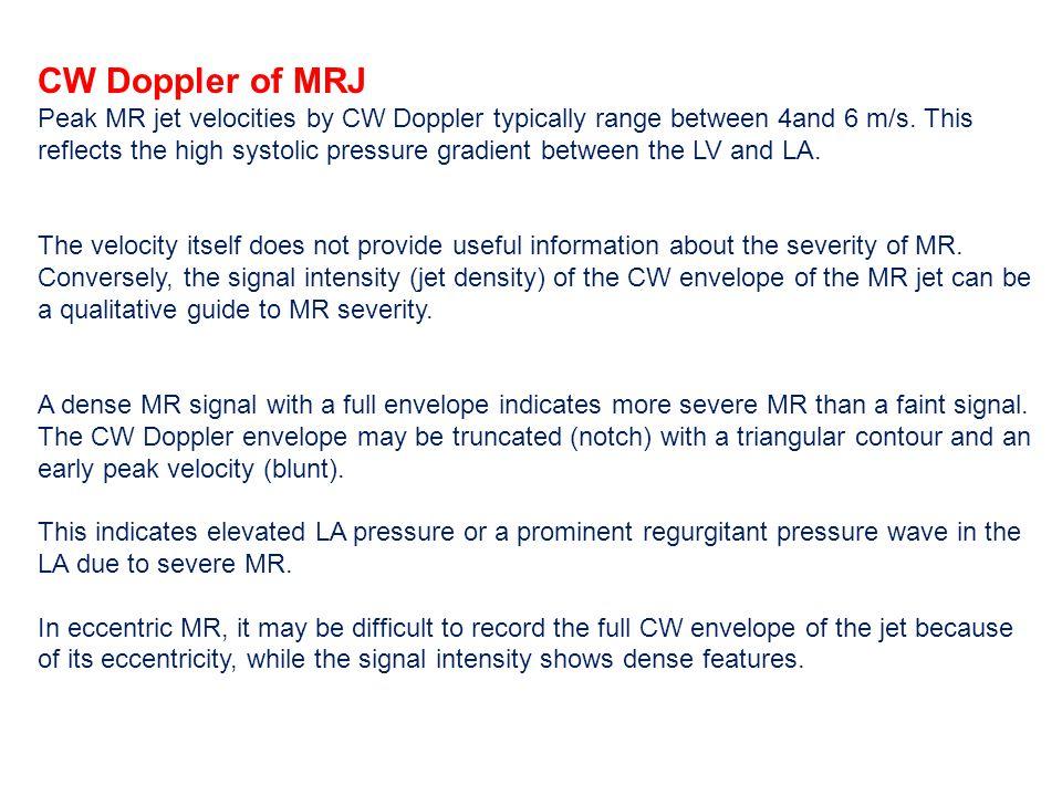 CW Doppler of MRJ