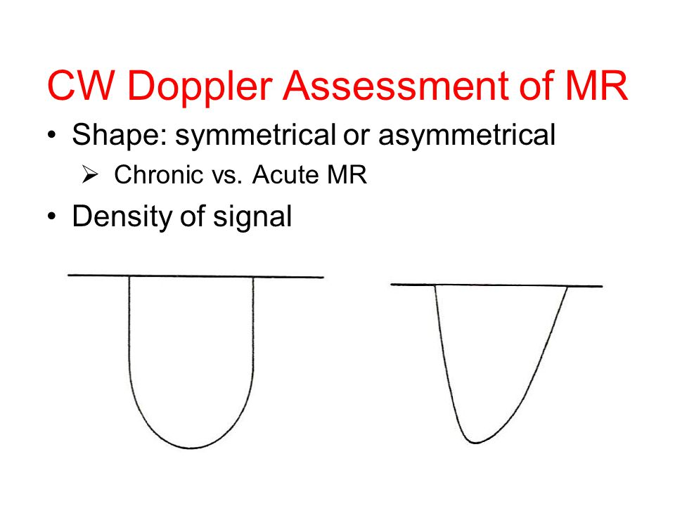 CW Doppler Assessment of MR