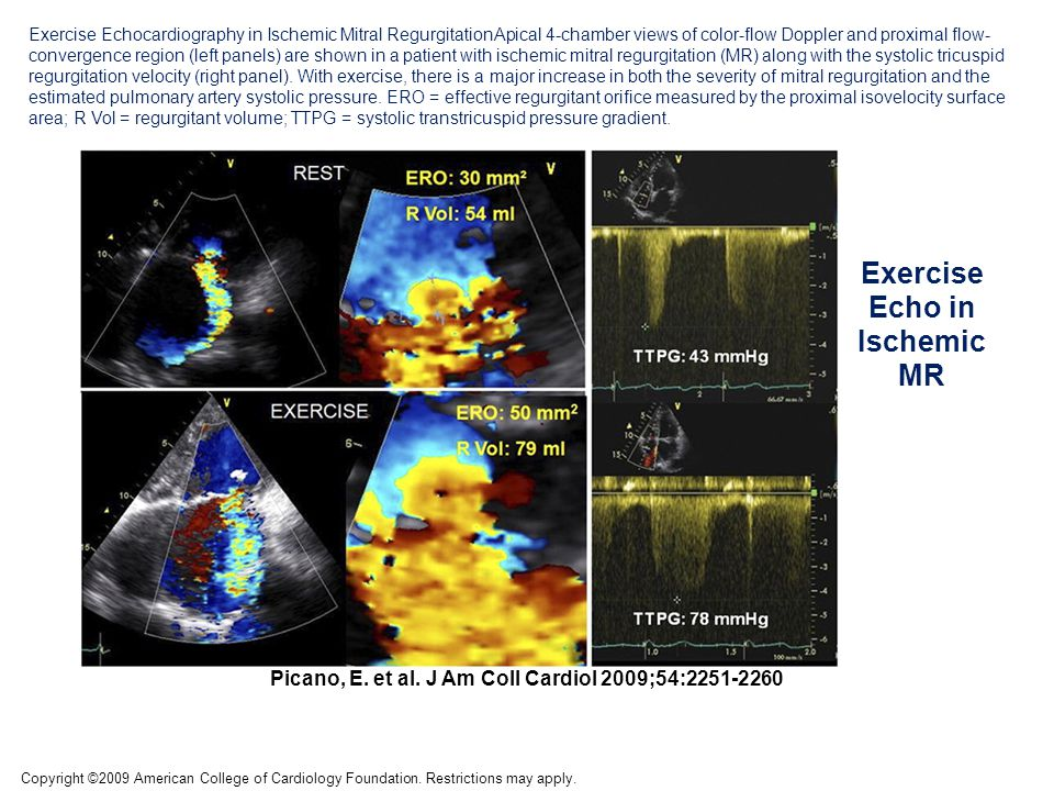 Exercise Echo in Ischemic MR