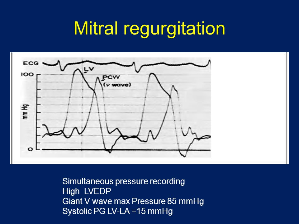 Mitral regurgitation Simultaneous pressure recording High LVEDP