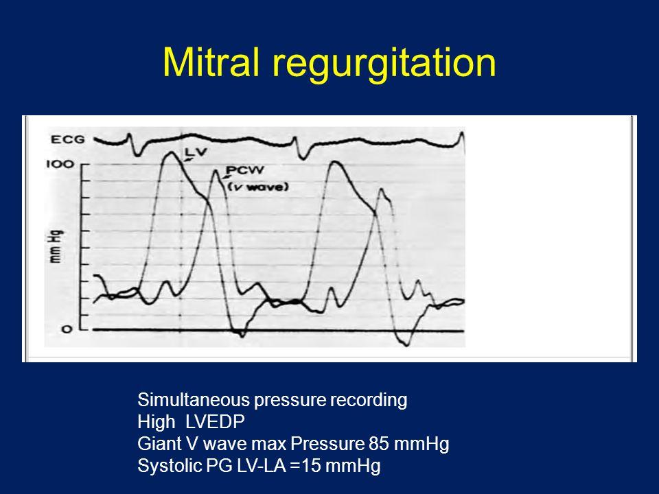 Mitral regurgitation Simultaneous pressure recording High LVEDP
