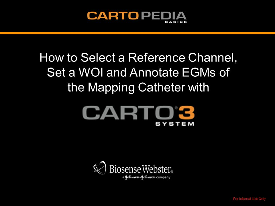 How to Select a Reference Channel, Set a WOI and Annotate EGMs of the Mapping Catheter with