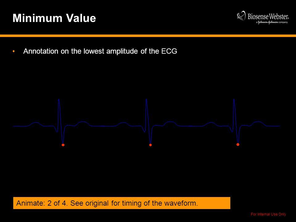 Minimum Value Annotation on the lowest amplitude of the ECG