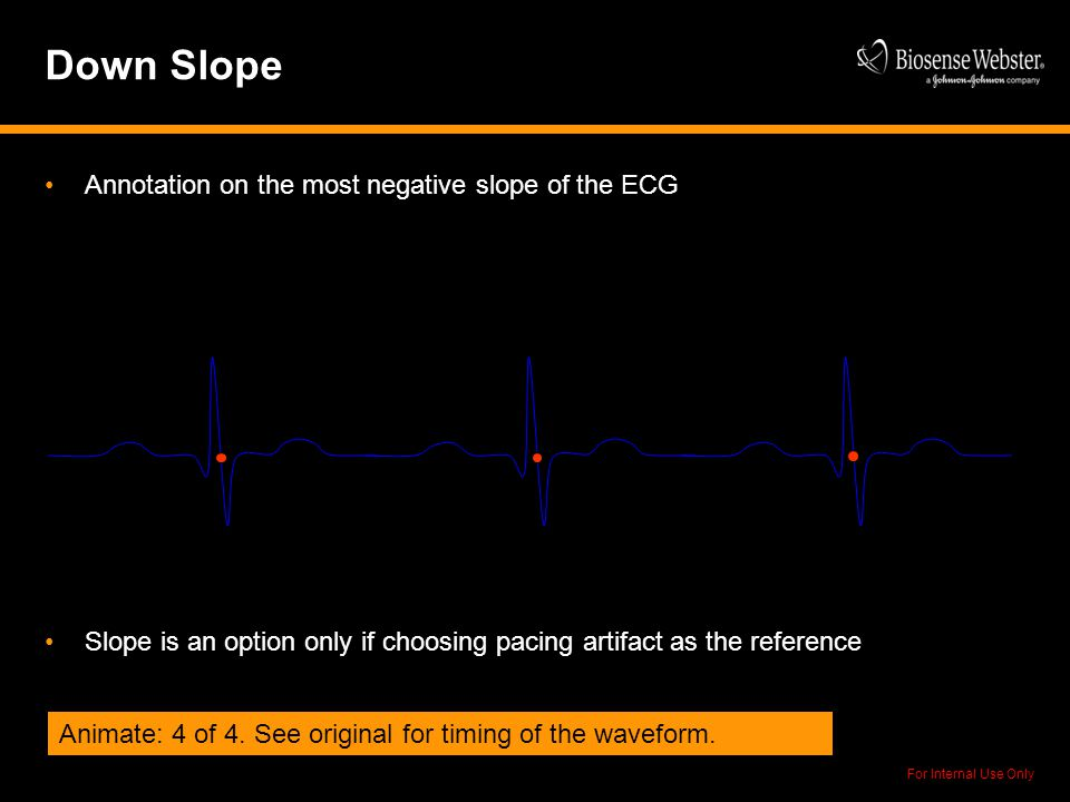 Down Slope Annotation on the most negative slope of the ECG