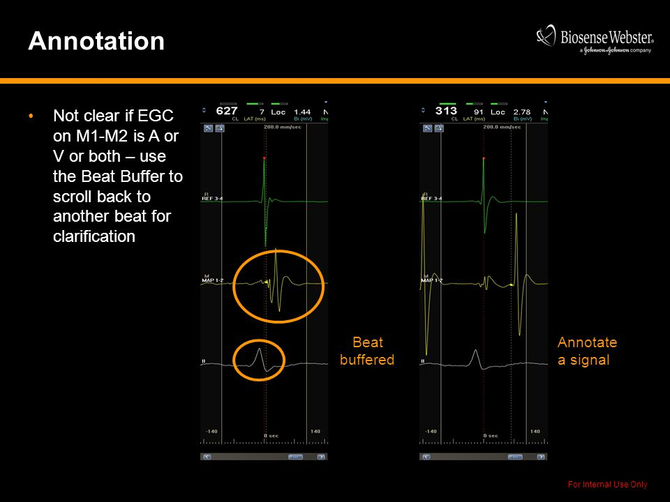 Annotation Not clear if EGC on M1-M2 is A or V or both – use the Beat Buffer to scroll back to another beat for clarification.
