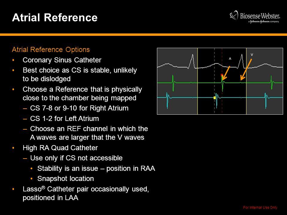 Atrial Reference Atrial Reference Options Coronary Sinus Catheter