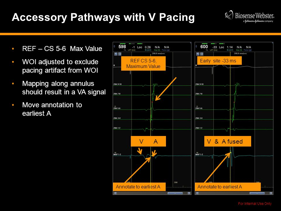 Accessory Pathways with V Pacing