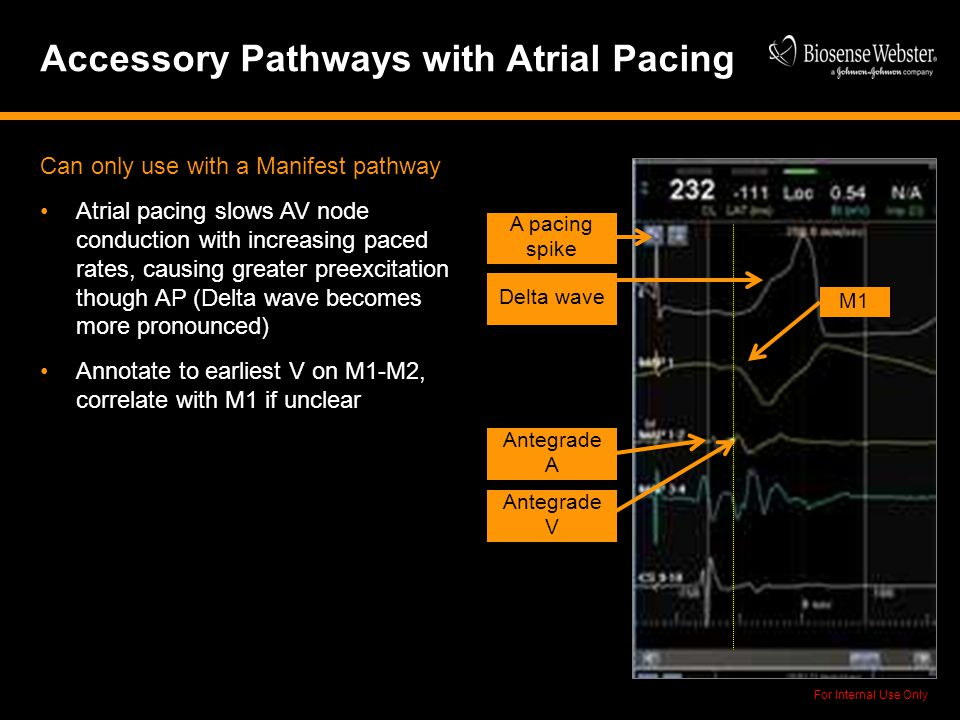 Accessory Pathways with Atrial Pacing