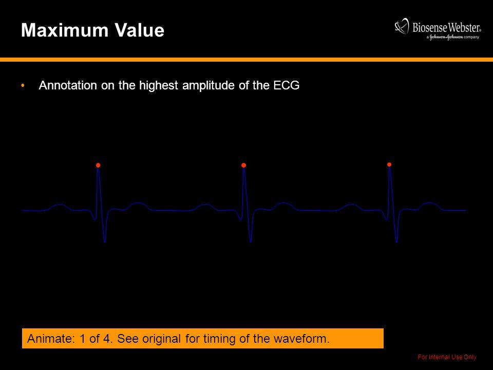 Maximum Value Annotation on the highest amplitude of the ECG