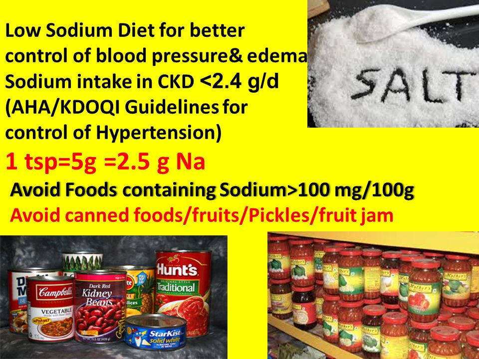 Low Sodium Diet for better control of blood pressure& edema Sodium intake in CKD <2.4 g/d (AHA/KDOQI Guidelines for control of Hypertension) 1 tsp=5g =2.5 g Na Avoid Foods containing Sodium>100 mg/100g Avoid canned foods/fruits/Pickles/fruit jam