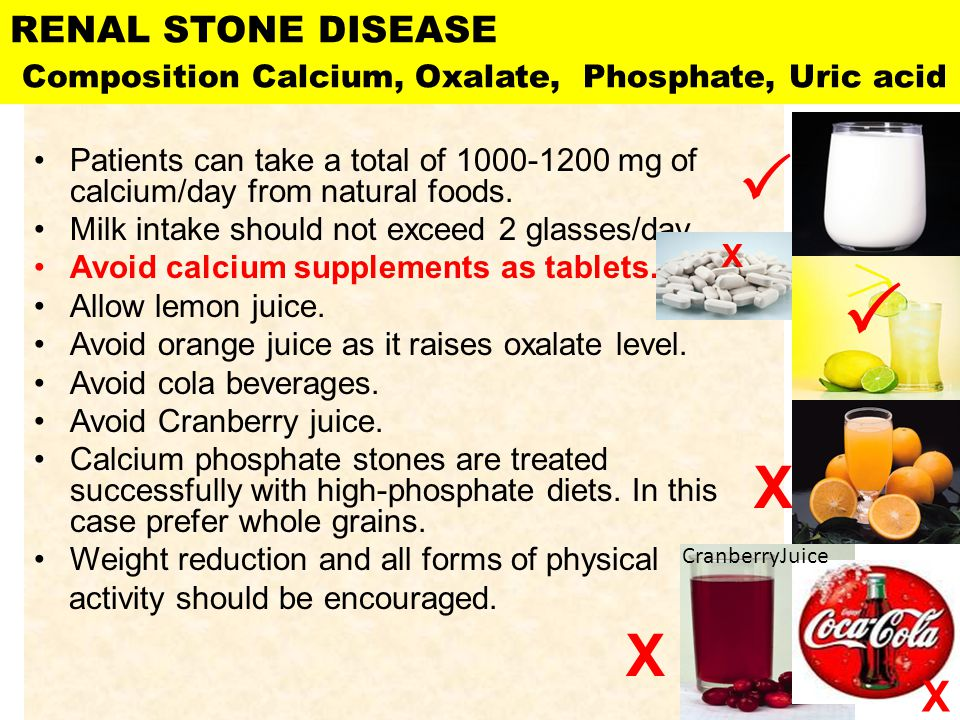 RENAL STONE DISEASE Composition Calcium, Oxalate, Phosphate, Uric acid