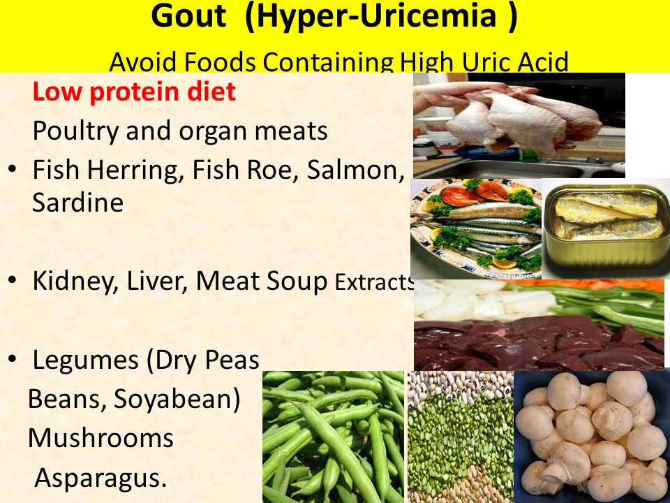 Gout (Hyper-Uricemia ) Avoid Foods Containing High Uric Acid
