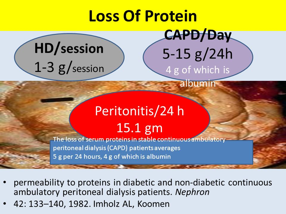 Loss Of Protein CAPD/Day HD/session 5-15 g/24h 1-3 g/session