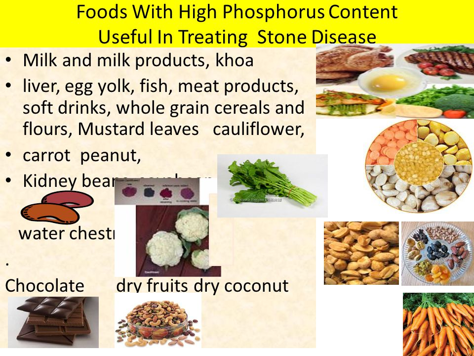 Foods With High Phosphorus Content Useful In Treating Stone Disease