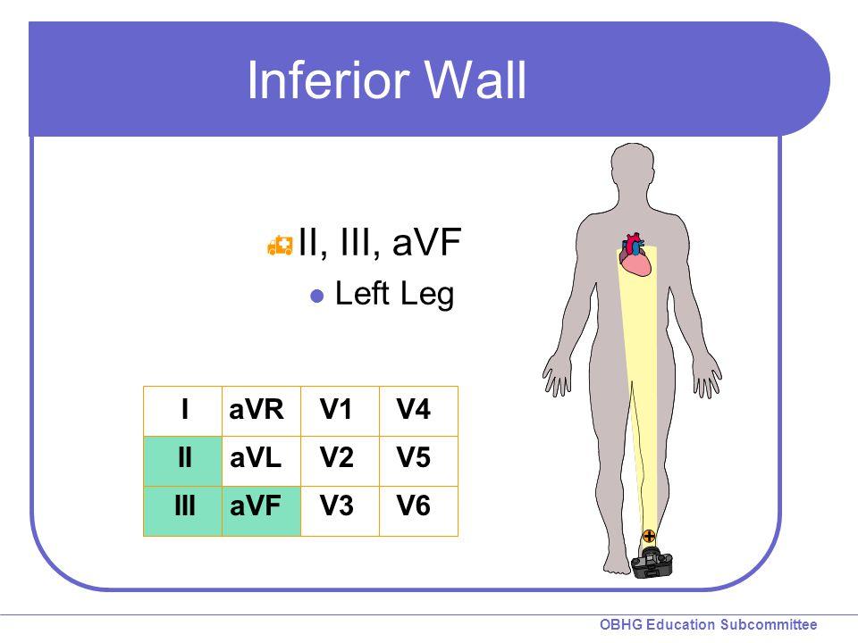 Inferior Wall II, III, aVF Left Leg I II III aVR aVL aVF V1 V2 V3 V4