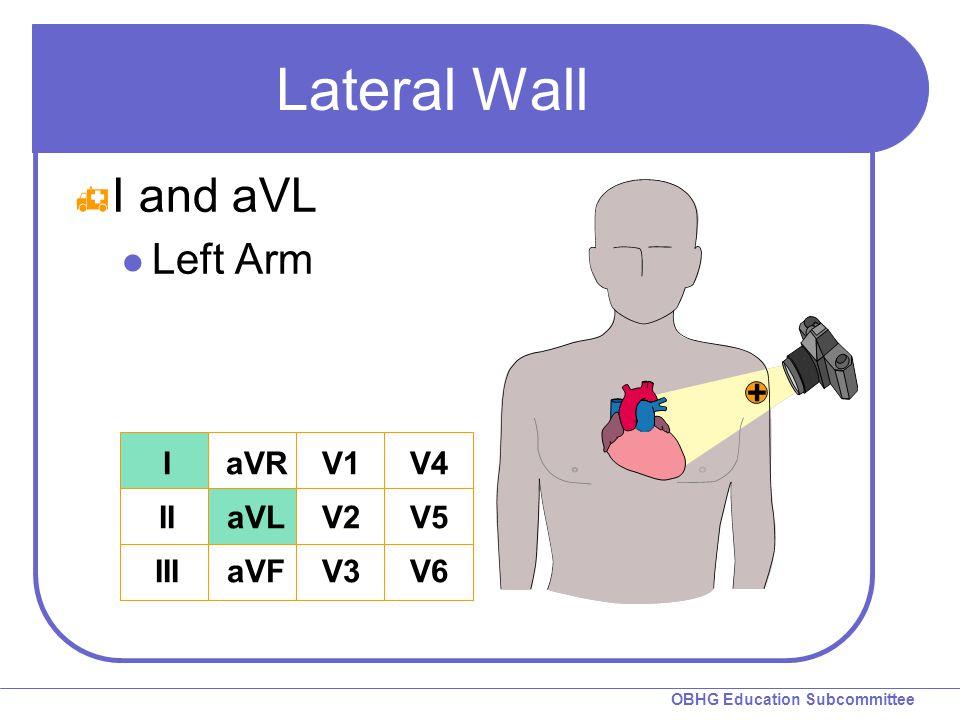 Lateral Wall I and aVL Left Arm I II III aVR aVL aVF V1 V2 V3 V4 V5 V6