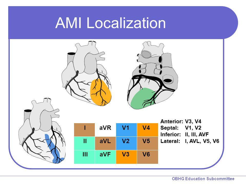 AMI Localization I II III aVR aVL aVF V1 V2 V3 V4 V5 V6