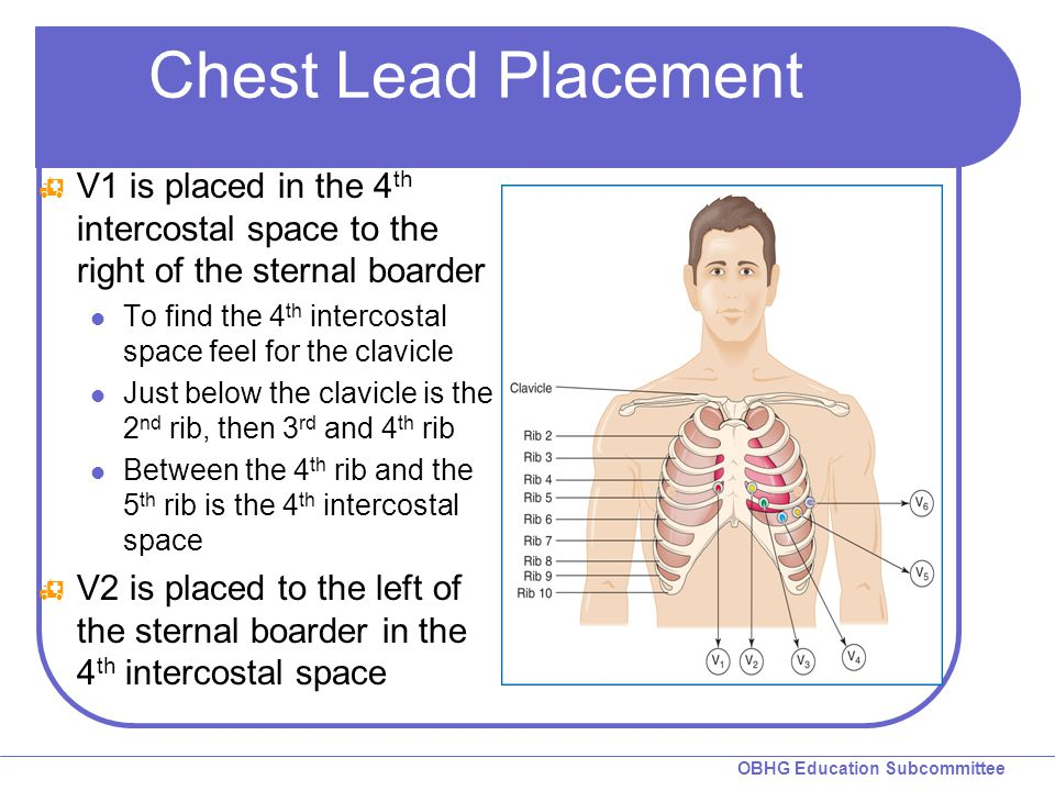 Chest Lead Placement V1 is placed in the 4th intercostal space to the right of the sternal boarder.