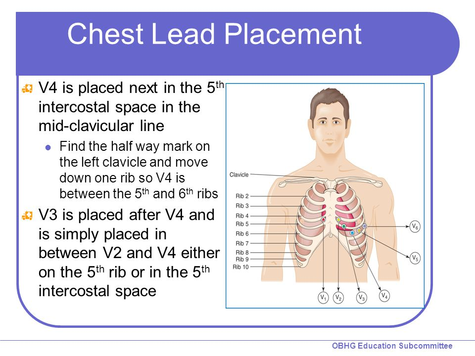 Chest Lead Placement V4 is placed next in the 5th intercostal space in the mid-clavicular line.