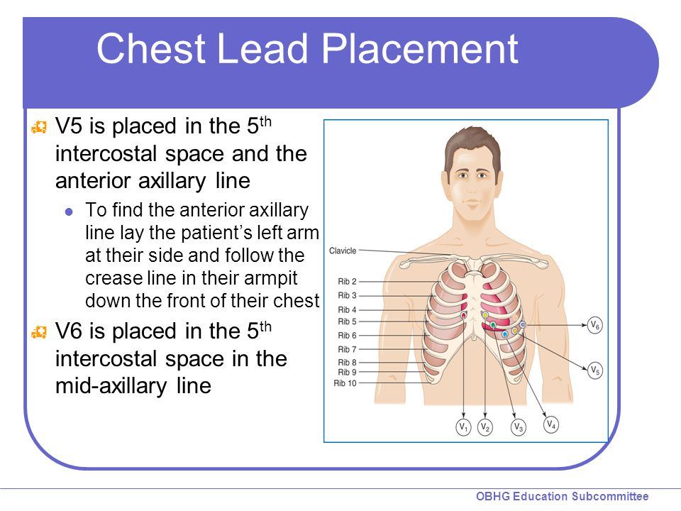 Chest Lead Placement V5 is placed in the 5th intercostal space and the anterior axillary line.