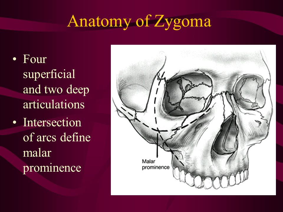 Anatomy of Zygoma Four superficial and two deep articulations