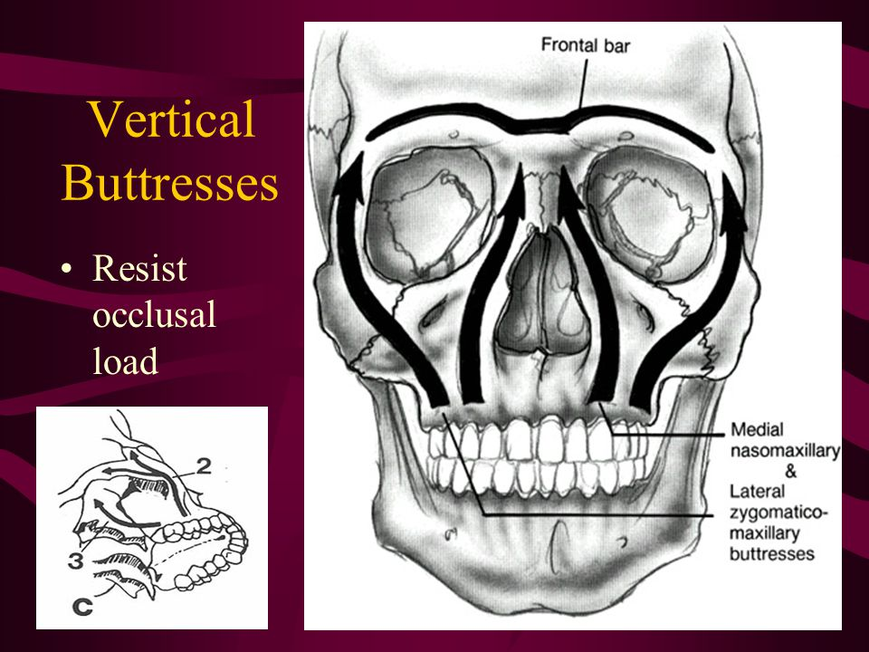 Vertical Buttresses Resist occlusal load