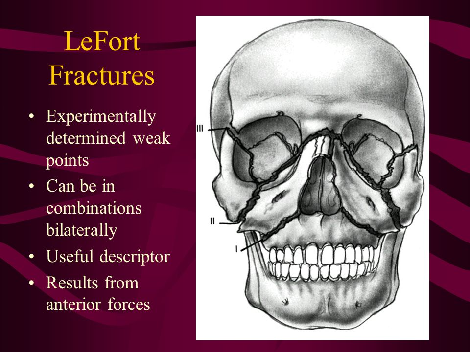 LeFort Fractures Experimentally determined weak points